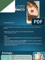 ecv isquemico.pdf