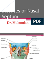 Deviated Nasal Septum 2