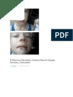 Protocolo Borrador Terapeutico Naturopatico Para El Herpes s16abril2016731pm
