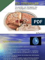 tumores-cerebrales-1210487477563807-8