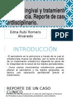 Caso clínico de ortodoncia interdisciplinaria