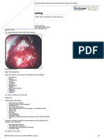Upper Gastrointestinal Bleeding_ Practice Essentials, Background, Etiology
