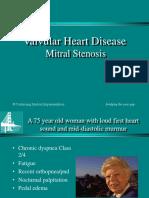 Mitral Stenosis unlam