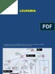 Kuliah Leukemia