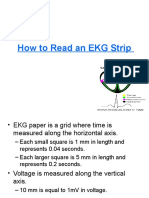 How to Read an EKG Strip Lecture