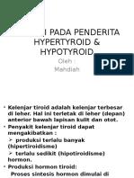 ILMU GIZI Hypertyroid