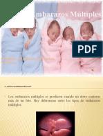 Embarazos Multiples