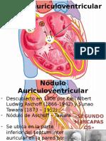 Nódulo Auriculoventricular