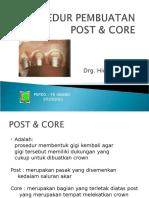 Prosedur Pembuatan Post Core