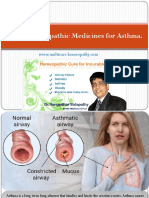 Top 4 Homeopathic Medicines for Asthma