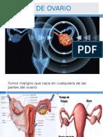 Cancer de Ovario.