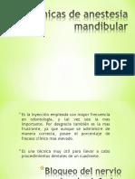 tcnicasdeanestesiamandibular-131025105015-phpapp01