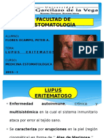 LUPUS ERITEMATOSO  ( EXPO - FINAL ).pptx