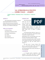 12.Bilateral Antrochoanal Polyp In