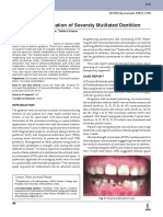 Occlusal Rehabilitation of Severely Mutilated Dentition