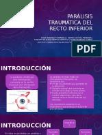 Parálisis traumática del recto inferior.pptx