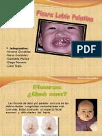Fisura Labio Palatina Final