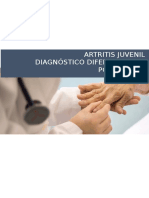 Artritis Juvenil y Poliartritis