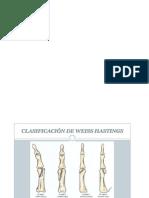 Fractura e Falanges
