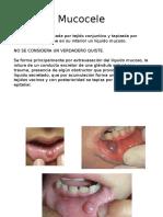 Iniciación Mucocele Ranula Sialolitiasis