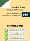 Radio Pneumothorax