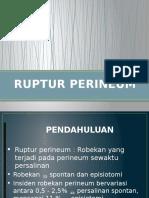 Ruptur Perineum