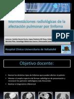 linfoma_pulmonar_copy1 (1)