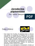 7351183 Xeroderma Pigmentosa