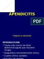apendicitis-111117185102-phpapp02.ppt