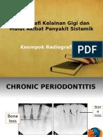 170032981-Radiografi-Kelainan-Gigi-dan-Mulut-Akibat-Penyakit-Sistemik-pptx.pptx