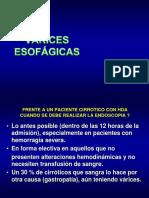HDA Por Varices Esofagicas