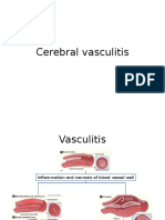 Cerebral Vasculitis