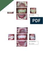 Tugas Odontogram