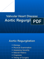 Aortic_Regurgitation.ppt