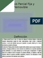 Prótesis Parcial Fija y Removible