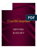 12-Lead Ekg Interpretation