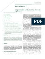 Management of Degenerative Lumbar Spinal Stenosis- An Evidence-based Review