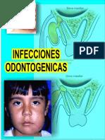 infecciones odontogenica