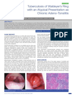 Tonsilitis India