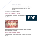 Individual Tooth Malpositions