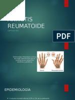 Artritis Osteoartritis Artritis Gotosa