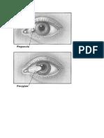 Pterygium vs Pinguecula