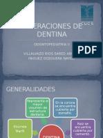 Alteraciones de Dentina