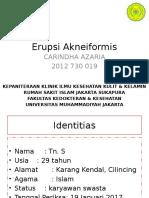 Erupsi Akneiformis