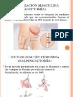 Metodos Anticionceptivos 2da Parte
