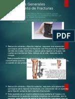 Principios Generales Tratamiento de Fracturas