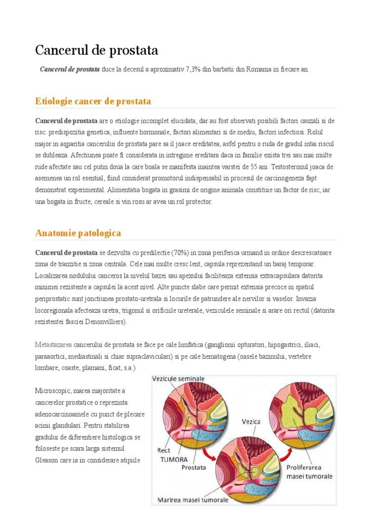 prostata tratament hormonal