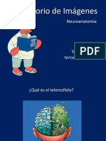 Telencefalo y Tercer Ventriculo