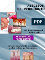 Clase Absceso Periodontal