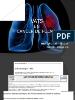 Vats Cancer Pulmon
